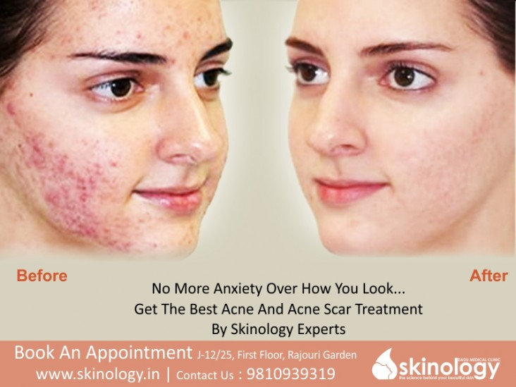 Acne-And-Acne-Scars-Skinology
