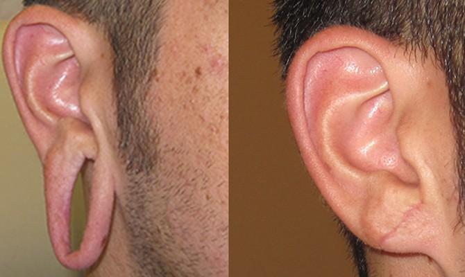 earlobe repair treatment