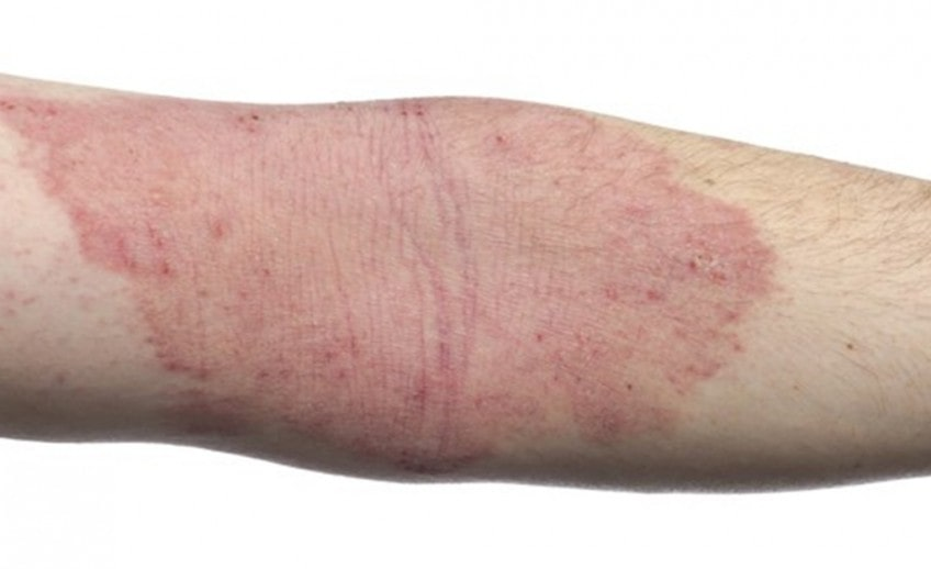 Eczema and Your Skin