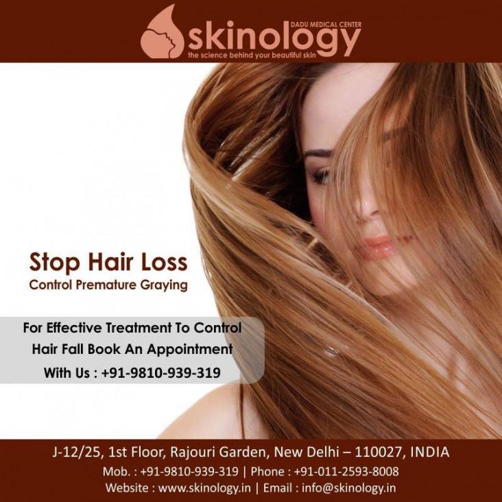 Skinology_Hairfallpost