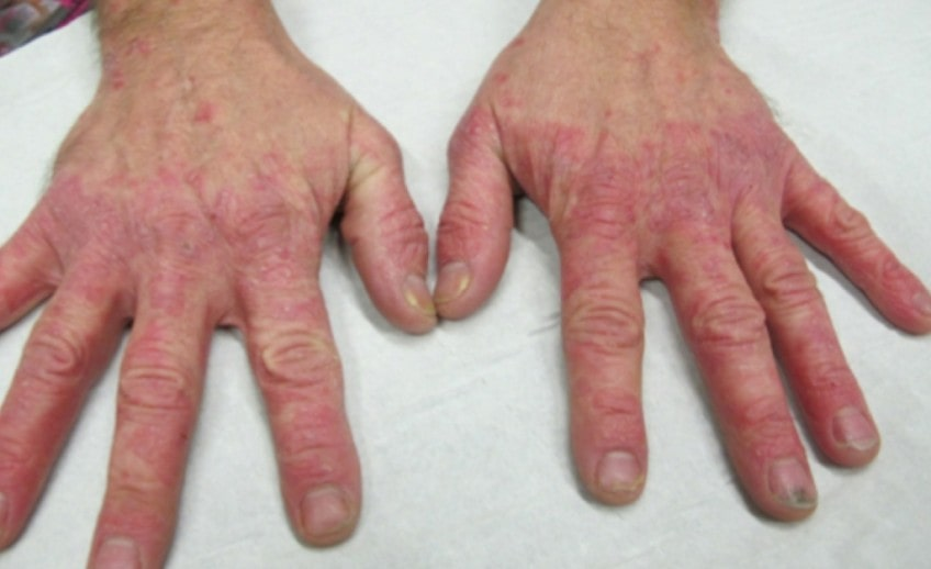 Atopic dermatitis treatment