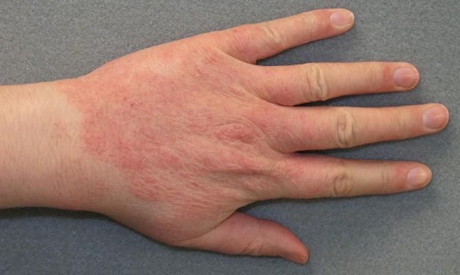 contact-dermatitis