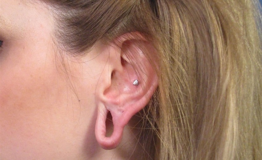 Earlobe-repair treatment