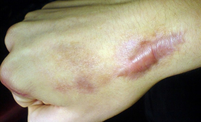 keloid scar on skin