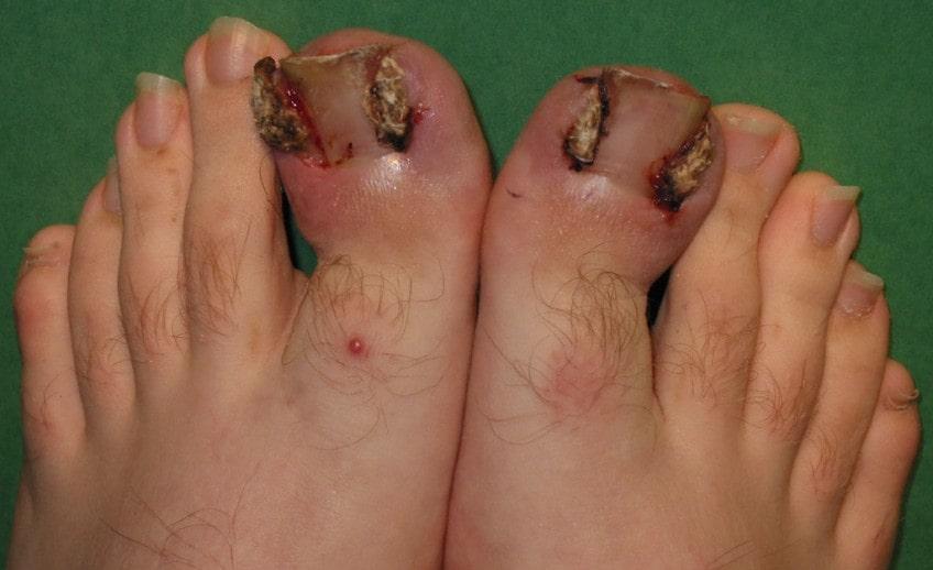 nail avulsion treatment