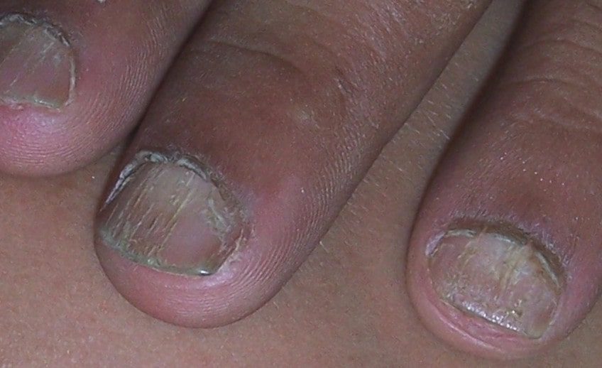 nail disorder treatment