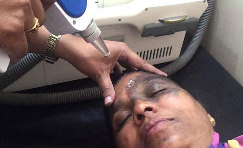 periorbital pigmentation