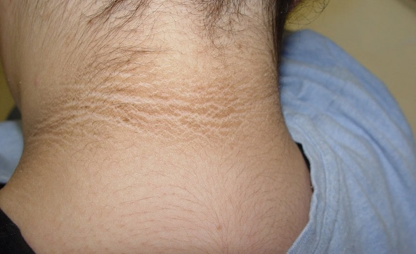 Pseudo Acanthosis Treatment