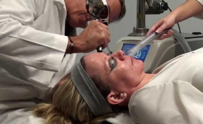 Carbon Dioxide Laser skin treatment