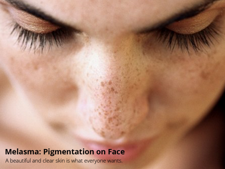 pigmentation on face