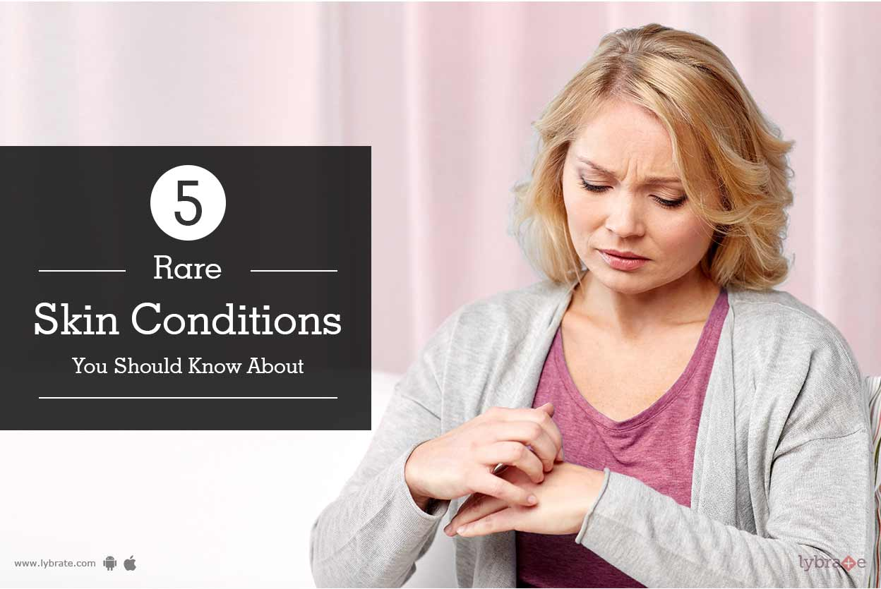 skin-problems-conditions