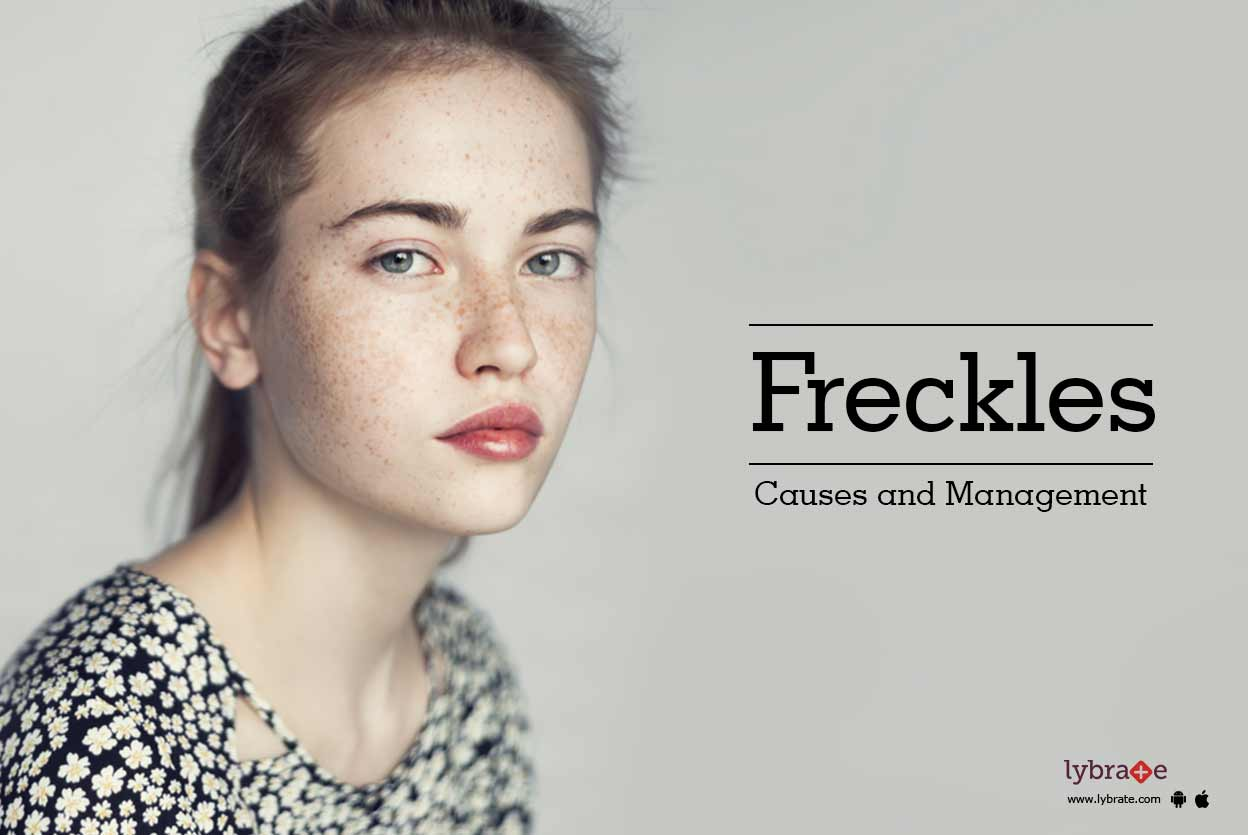 Freckles Causes and Management