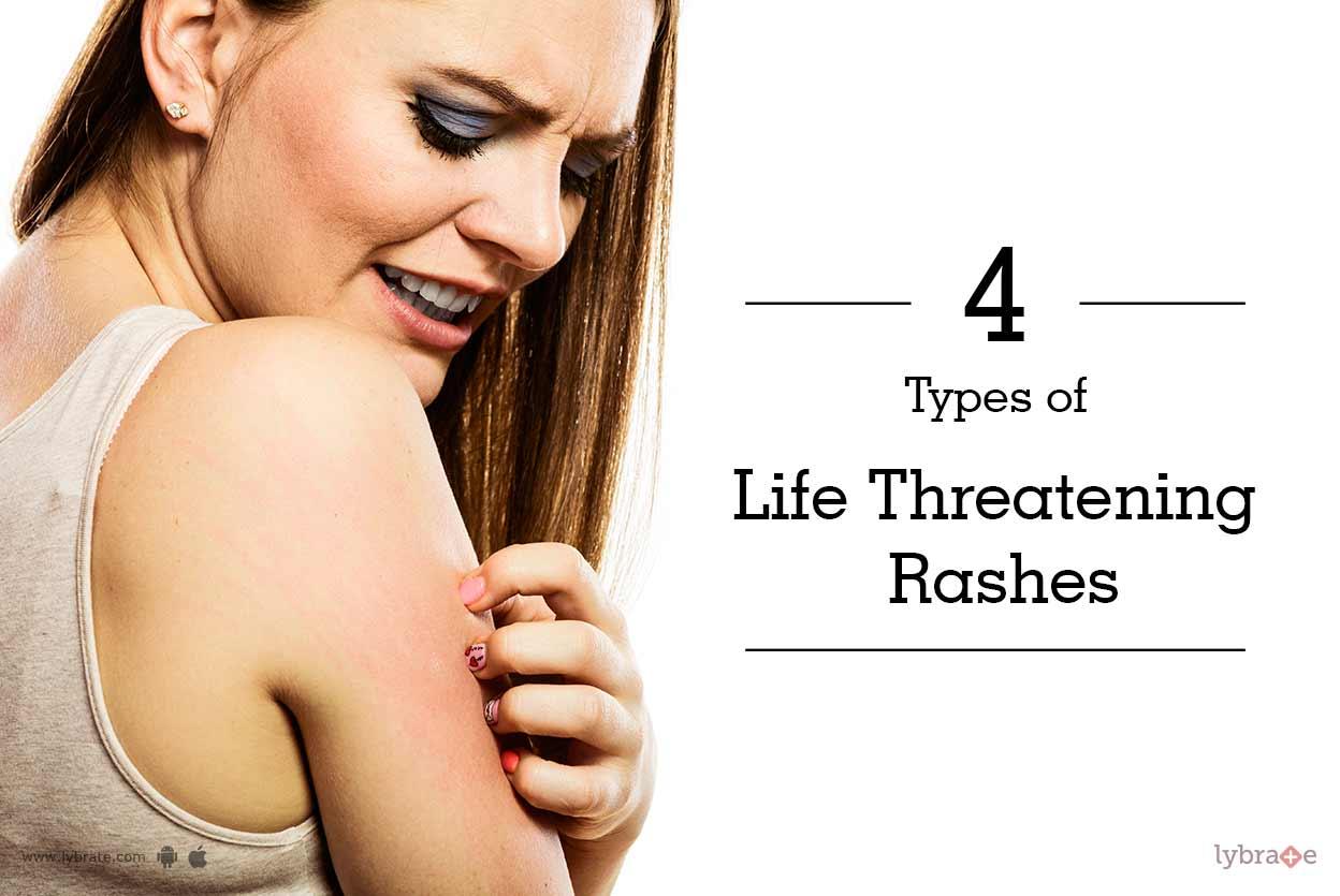 Types of Life Threatening Rashes