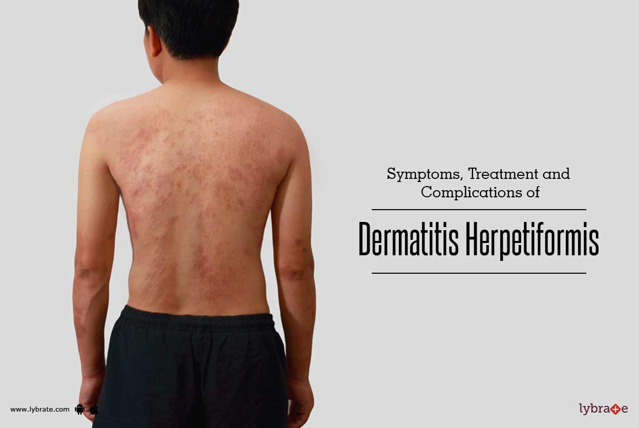 Treatment of Dermatitis Herpetiformis