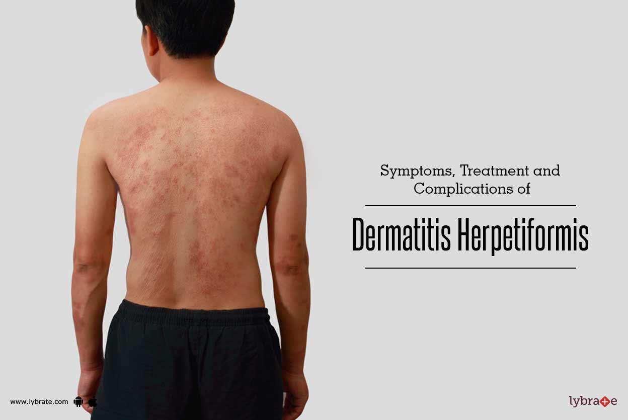 Treatment of Dermatitis Herpetiformis