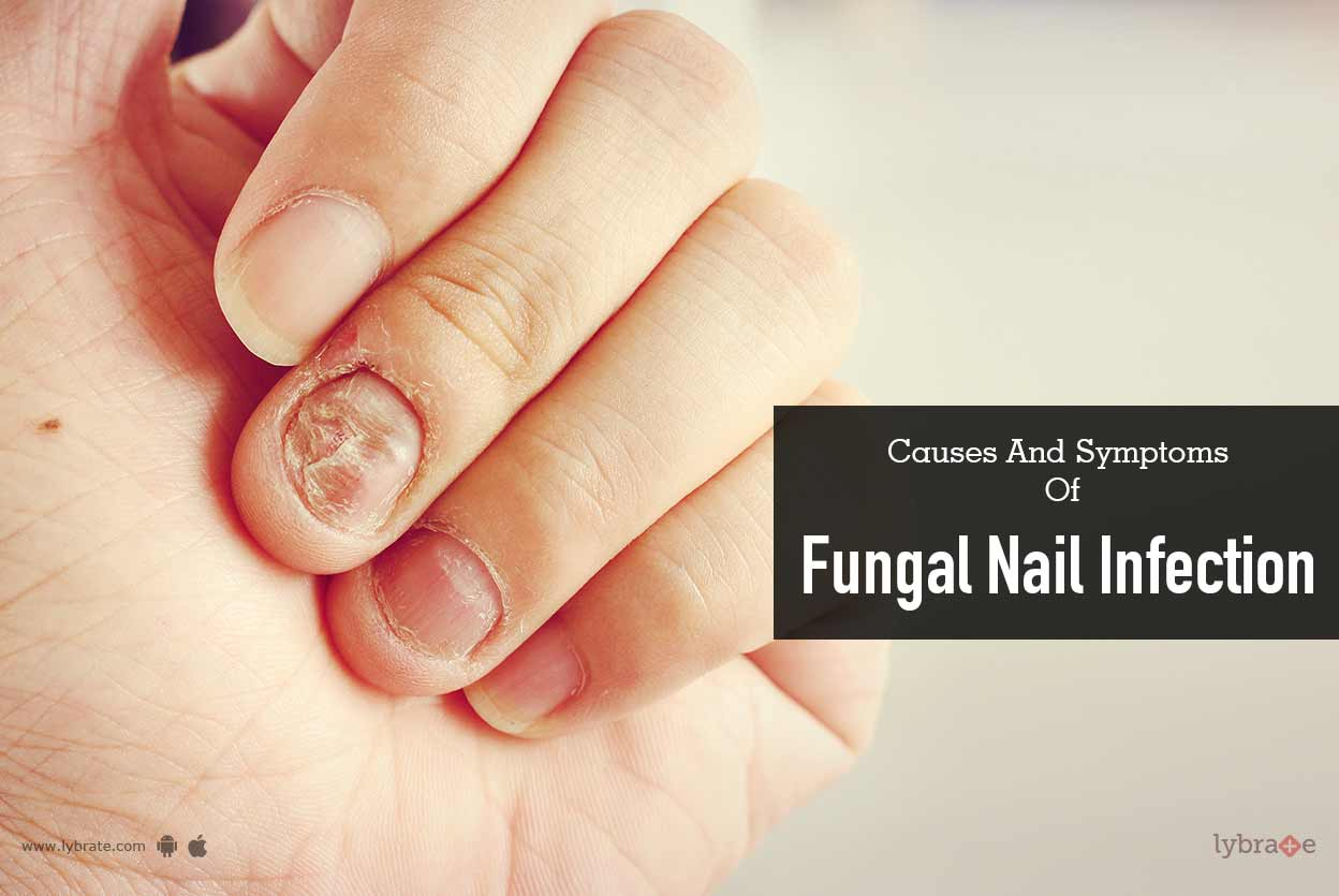 Causes and Symptoms of Fungal Nail Infection