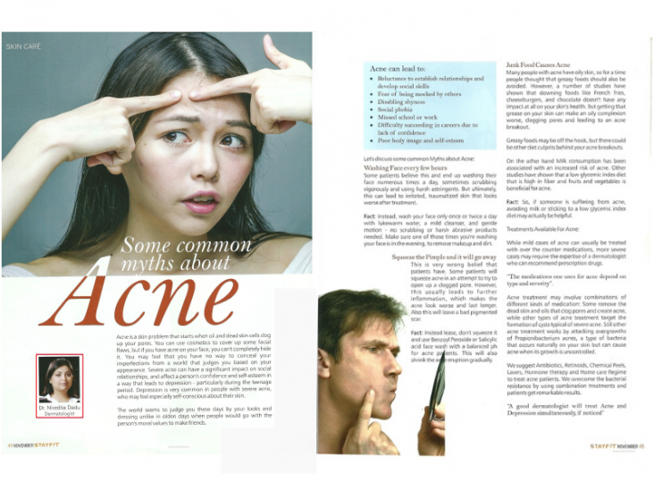 skinology news-Some Common Myths about Acne