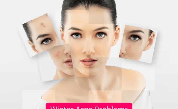 winter acne treatment