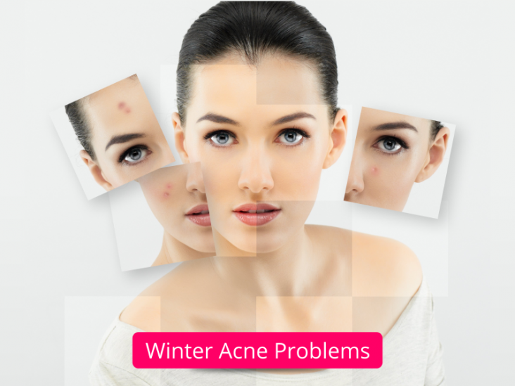 winter acne treatment